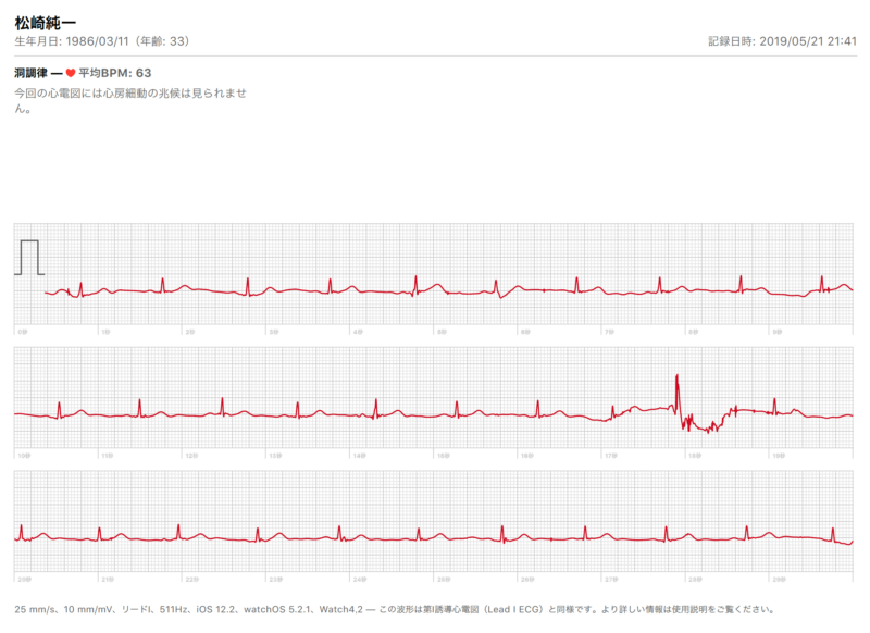 Apple Watch 心電図(ECG)機能 レポート