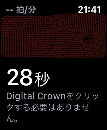 Apple Watch 心電図(ECG)アプリ機能レビュー 3