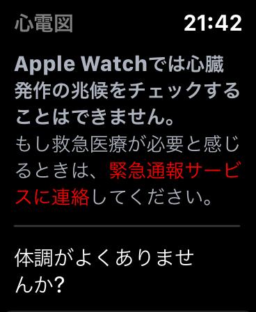 Apple Watch 心電図(ECG)アプリ機能レビュー 6