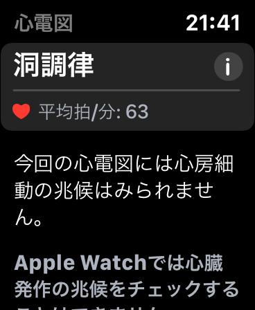 Apple Watch 心電図(ECG)アプリ機能レビュー 5