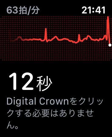 Apple Watch 心電図(ECG)アプリ機能レビュー 4